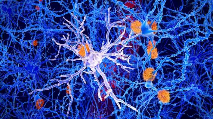 Darstellung der Zellveränderung bei Alzheimer