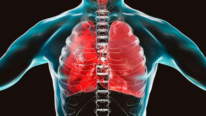 Symptome Lungenembolie